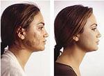 Пигментация правой щеки